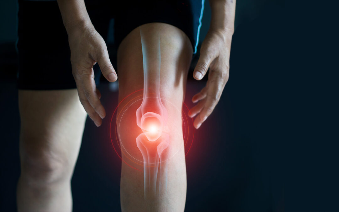 The Importance of Repairing a Meniscal Root Tear